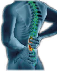 Back Pain Rehabilitation Programme Frank Gilroy Physiotherapy
